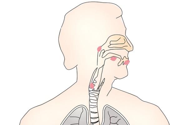 गले में चुभन के कारण व जोखिम कारक - Prickly Throat Causes & Risk Factors in Hindi