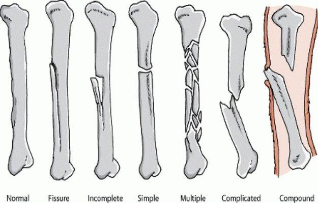 Image result for हड्डी टूटने पर